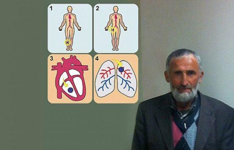 Akciğerine Pıhtı Atan Hasta, Ameliyatsız Hayata Döndürüldü