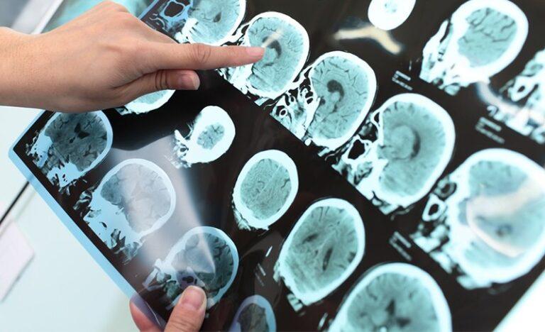 Günümüzün Hastalığı Alzheimer Hastalığı Özellikleri , Bakımı, Hastalık Seyri