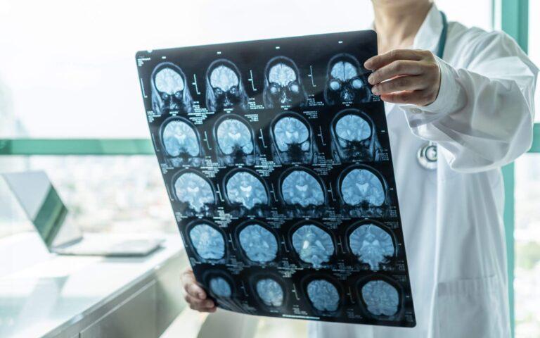 Beyin Cerrahisi ve Sinir Hastalıkları